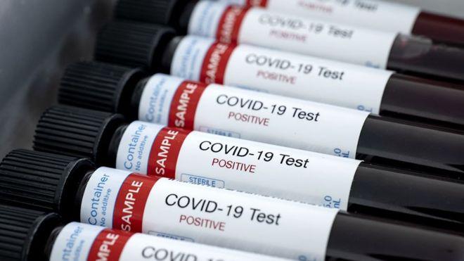 """Coronavirus: la nueva prueba de anticuerpos que es """"crucial"""" para hacer frente a pandemia del covid-19"""