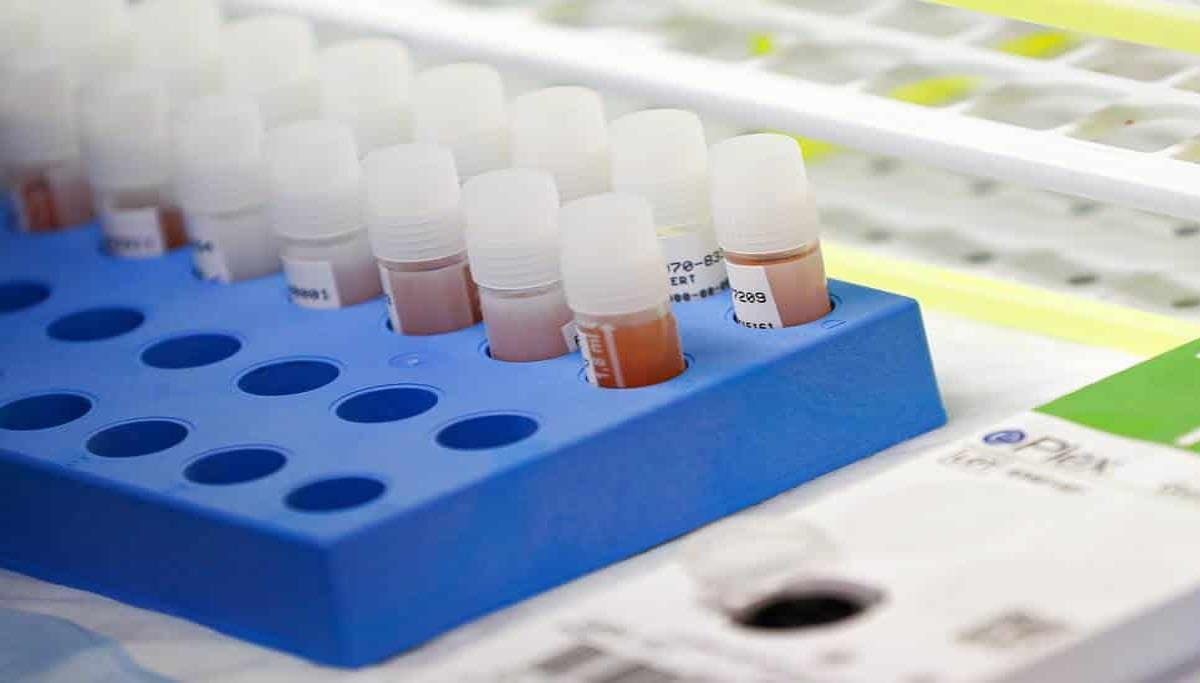 En Chihuahua reportan 815 casos de coronavirus y 144 decesos