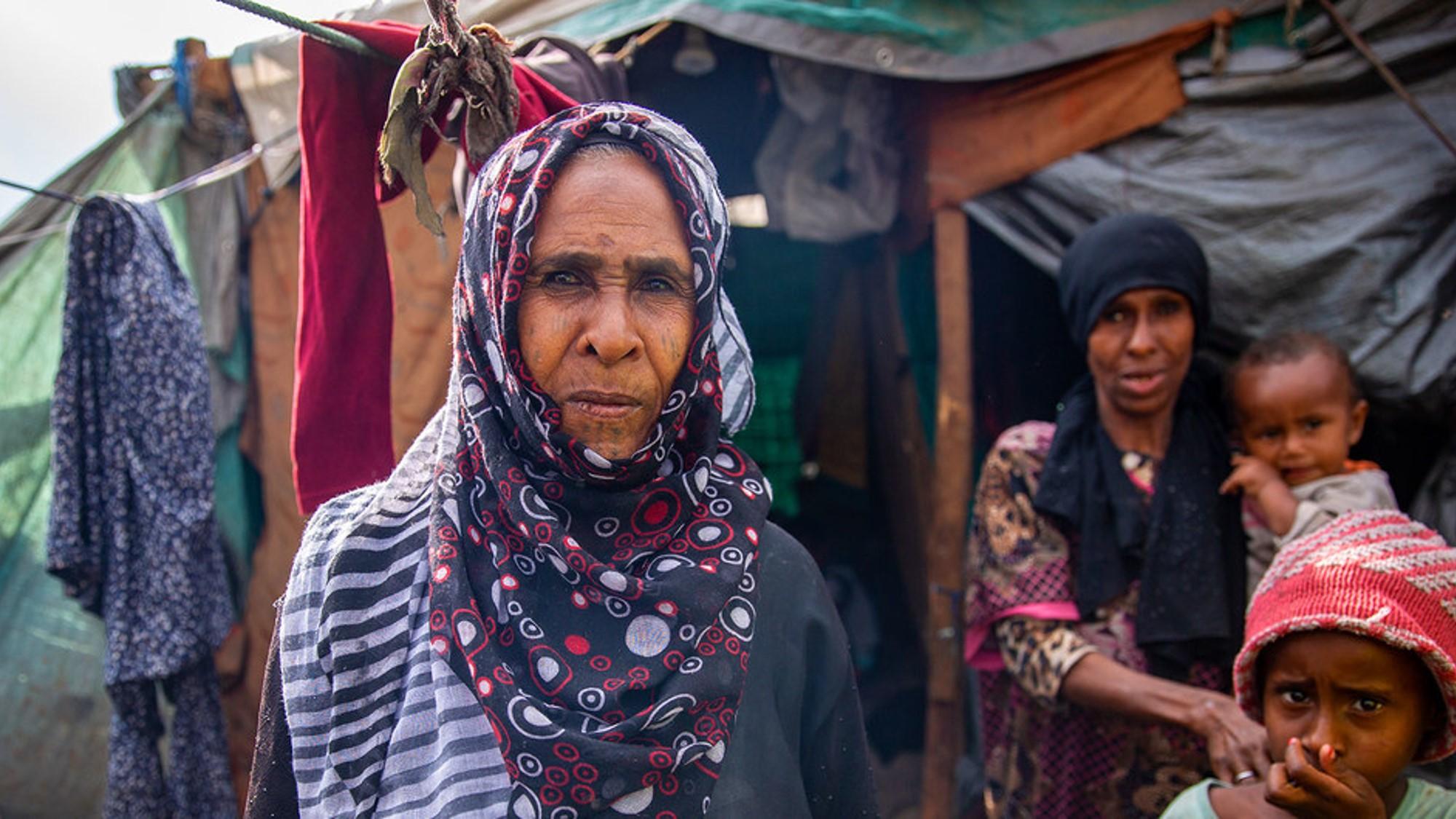 Yemen: la peor crisis humanitaria del mundo quedaría sin atención por falta de fondos
