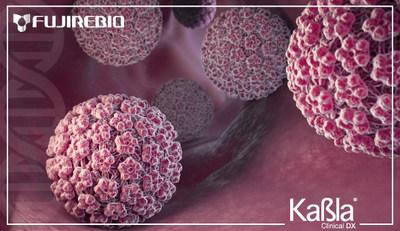 Nueva prueba de VPH en Orina podría ayudar en el diagnóstico Oportuno del Cáncer Cervicouterino