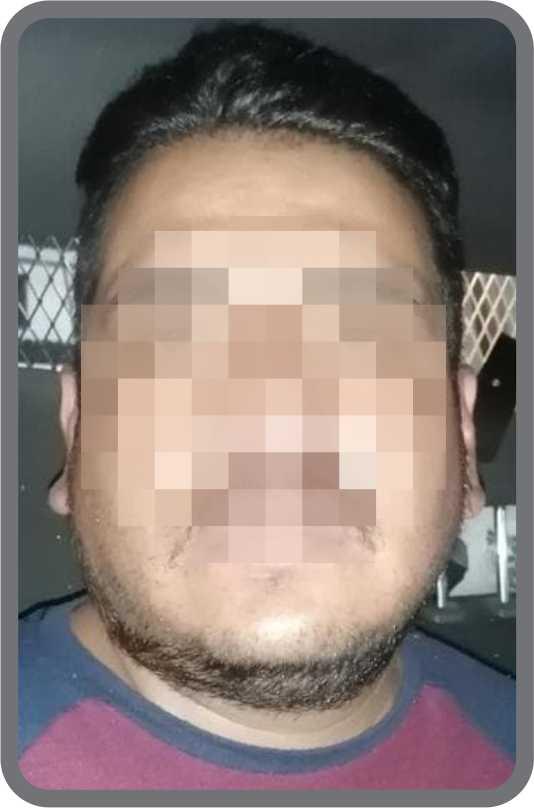 Desde Tlaxcala: Detenidos los que robaron tres concentradores de oxígeno y 32 cilindros en Tetlatlahuca