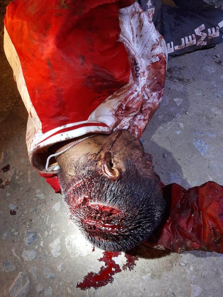 Lo machetearon en Huauchinango y está grave
