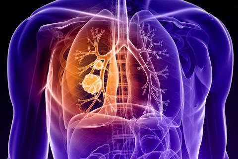 CStone anuncia que el primer ensayo clínico registracional de Sugemalimab