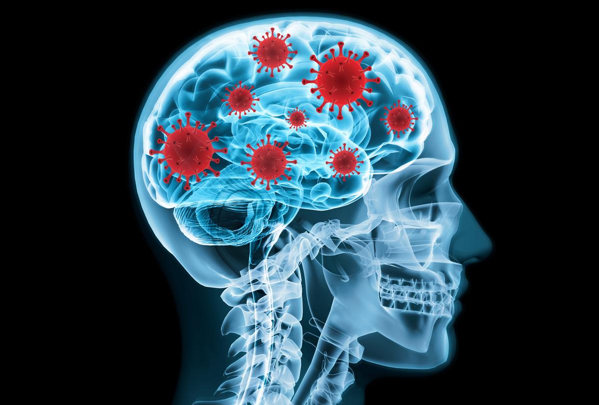 Congreso EAN: la COVID-19 genera graves problemas cognitivos y de conducta en los pacientes