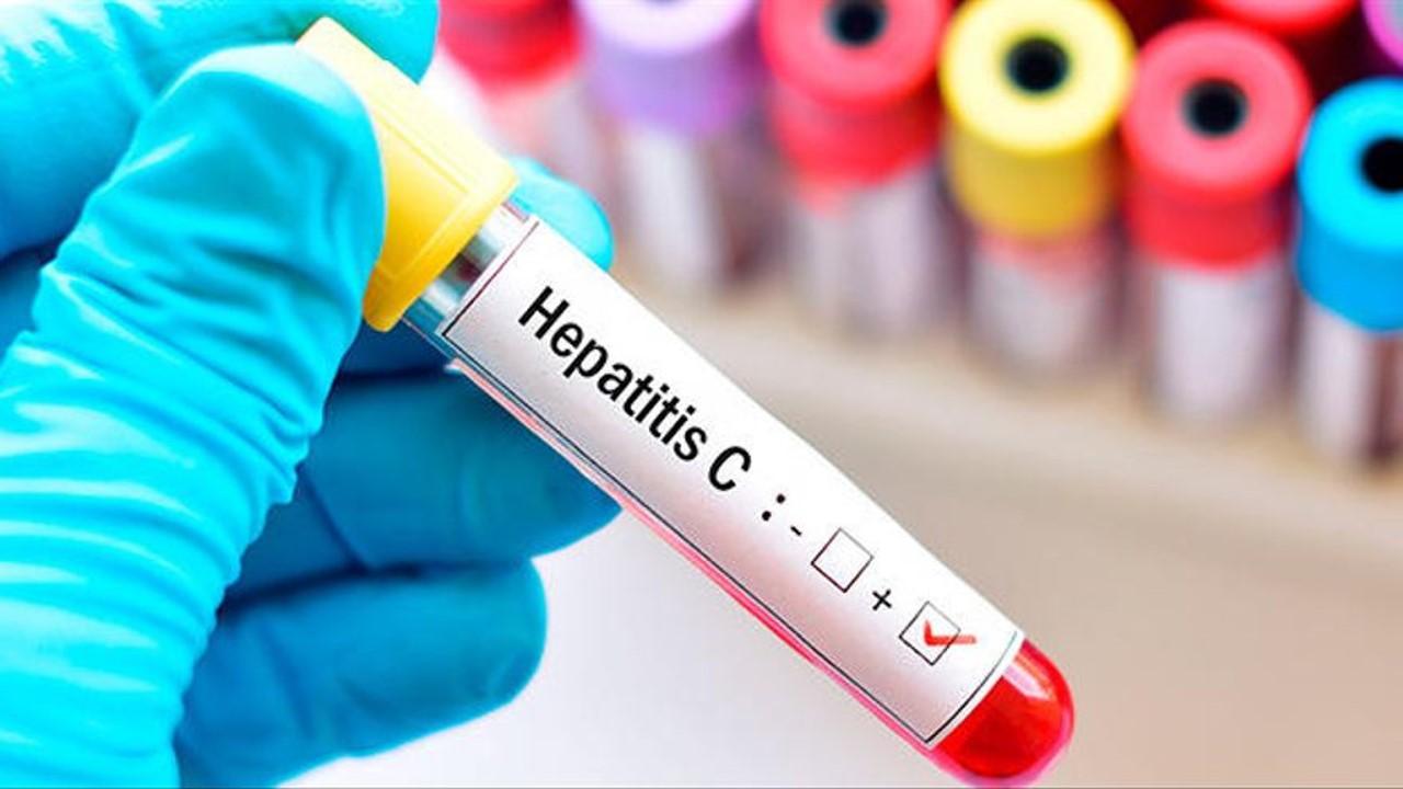 A pesar de los obstáculos que ha traído el COVID-19, eliminar la hepatitis en América Latina es posible