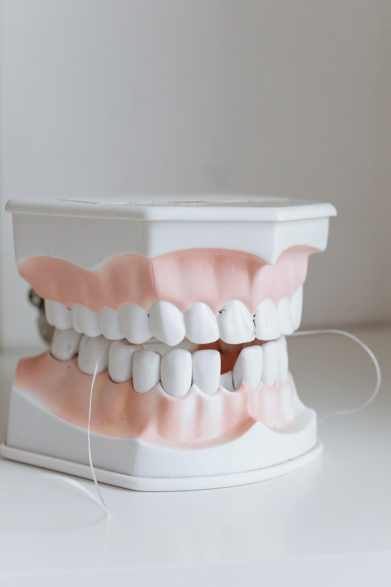 ¡Que no te pase! Secuelas de un mal diagnóstico de alineación dental