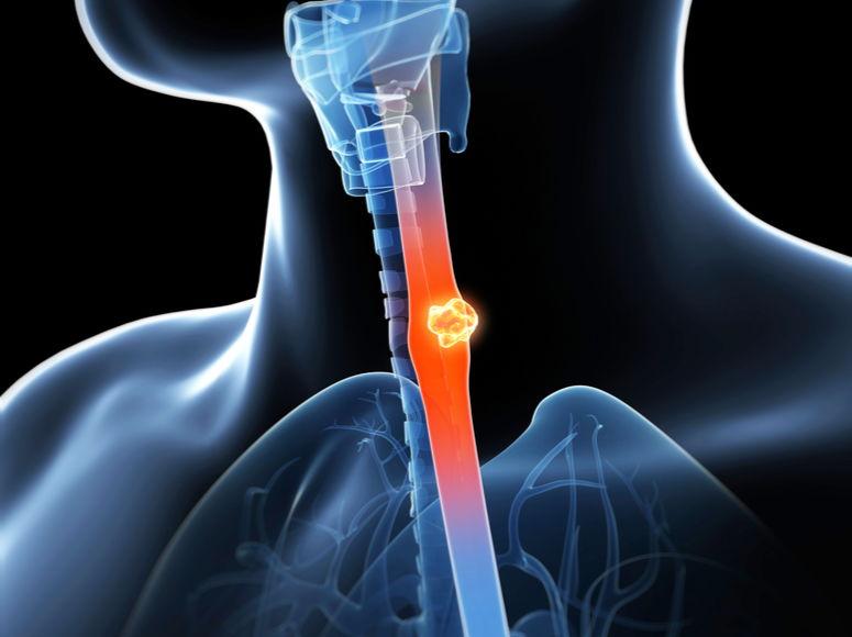 Satisfai Health adquiere licencia global para software de IA para detectar cáncer en estadio temprano en casos de Esófago de Barrett