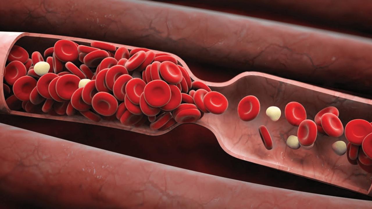 La campaña del Día Mundial de la Trombosis reúne a miles de socios en todo el mundo para llamar la atención sobre los coágulos sanguíneos como un problema de salud urgente